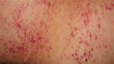 petechiae pictures  diagnosis  faqs