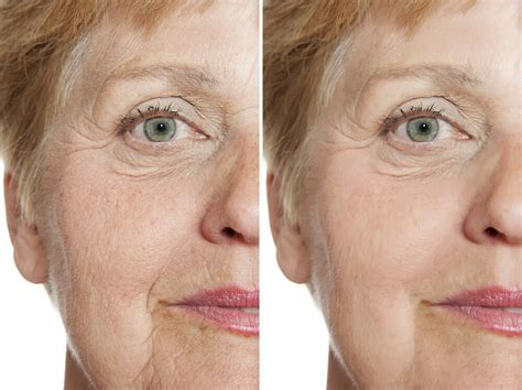 anti aging   national laser institute medical spa