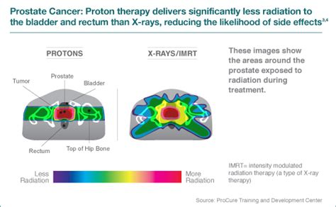 Proton Radiation Locations by Proton Therapy Less Side Effects For Cancer