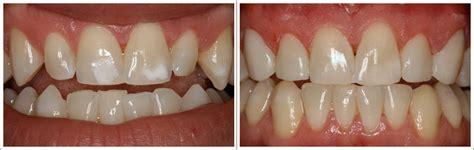 photo facette dentaire cas avant apr 232 s facettes composite