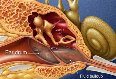 Diagram Of Ear Infection by Slideshow Pictures Anatomy Of An Ear Infection Causes