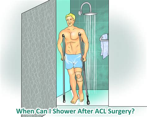 How To Shower After Acl Surgery - when and how can i shower after acl surgery acl injury