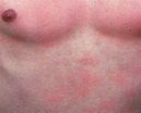 Prickly heat rash, miliaria causes, types, prevention and ...