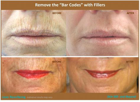 Best laser treatment for wrinkles around mouth