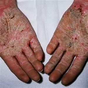 Лечение псориаз мази