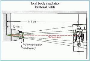 Total Body Irradiation