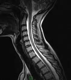 Normal Cervical Spine MRI Neck