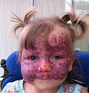Toddler Matilda Callaghan  2  Treats Severe Birthmark With
