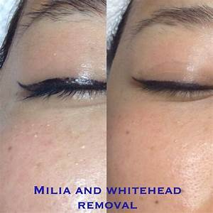 White head and milia removal. Picture is before and after ...