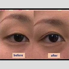 Japanese Koji Eye Talk Double Eyelid Glue Review Youtube