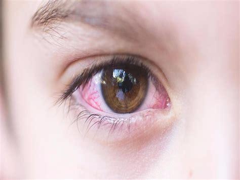 home remedies  pink eye energise kids