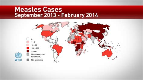 measles cases   washington