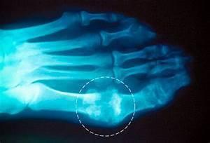 Боль в суставе ноги у большого пальца лечение