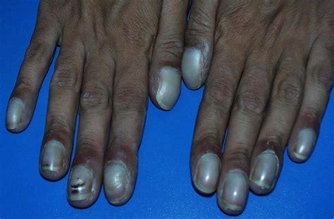 dusky nail beds cyanosis