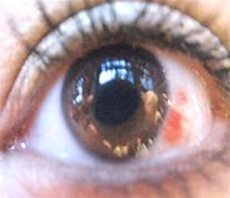 Herpes In The Eye Images Herpes Of The Eye Pictures Treatment Types Causes