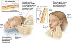 Plasmetic.com covers the latest trends in Face Lifts, facial surgery ... Facelift (Rhytidectomy)