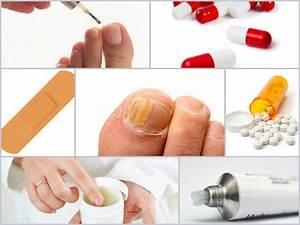 Хламидиоз и грибок ногтей