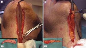 Direct Excision Of The Turkey Jowl Deformity  A Review Of 100 Consecutive Cases