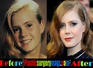 Amy Adams Plastic Surgery Before and After Pictures ...