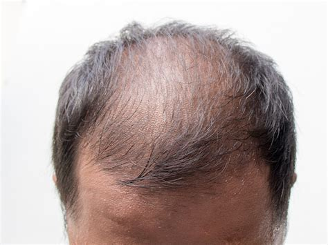 Male Pattern Baldness   Hair Restoration Toronto - Hair