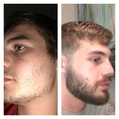 Minoxodil para barba e cabelo - Como usar, Antes e Depois