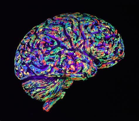 sensory processing disorder linked  brain structure differences huffpost