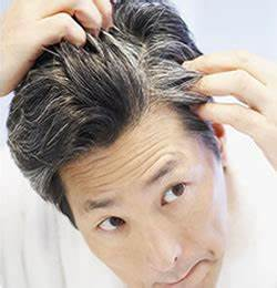 How To Prevent Premature Grey And White Hair