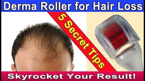 Microneedling Dermaroller for Hair loss or Hair Regrowth