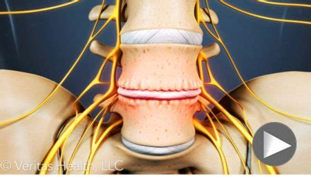 16 best images about spinal surgery on back to