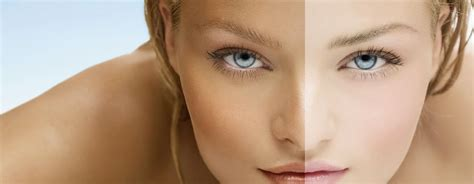 6 tips memutihkan wajah secara alami tanpa kimia berbahaya