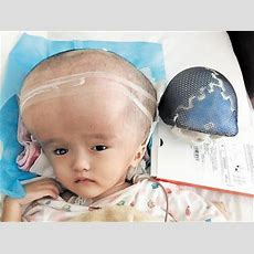 3dersorg  3yearold Whose Head Was Four Times Normal Size Receives 3d Printed Skull And Brain