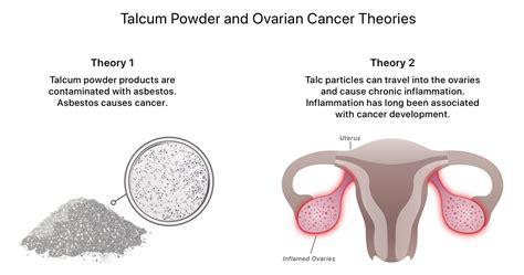talcum powder  cancer   talc  cancer