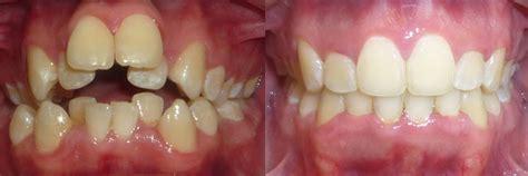 colorado orthodontics arvada thornton