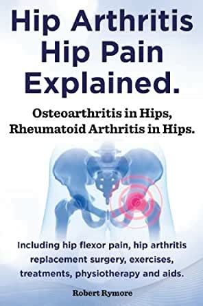 Hip arthritis, hip pain explained. Osteoarthritis in hips