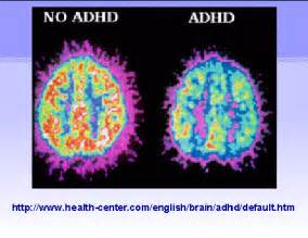 Attention Deficit-Hyperactivity Disorder (ADHD): ADHD