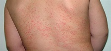 Prickly Heat treatment | Herbal Care Products