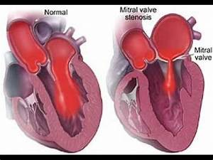 Mitral Stenosis - HeartUpdate.com