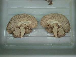 "Cut In Half on Twitter: ""Human Brain http://t.co/7pv8hIpXBQ"""