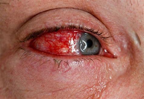 reactive arthritis  symptoms rash treatment