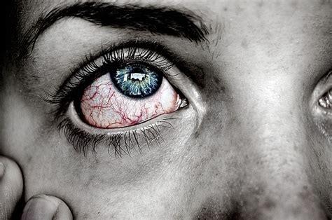 Juckende Augen Hausmittel gegen juckende & brennende