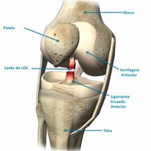 Artrose - tratamento da Artroses - tratamento de Artrose