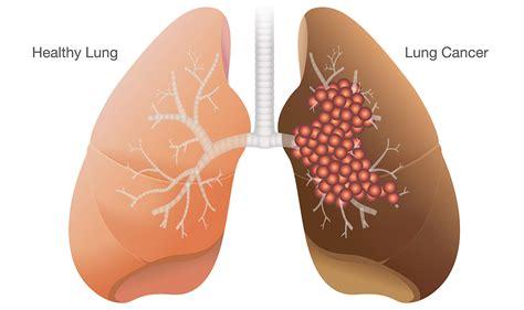 smokers   lung cancer university  utah