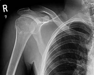 Fracture surgical neck of the humerus   Image ...