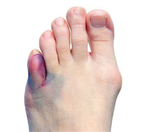 Take This Broken Boat And Point It Home by 3 Reasons Why Your Broken Toe Is Not Healing Ways To