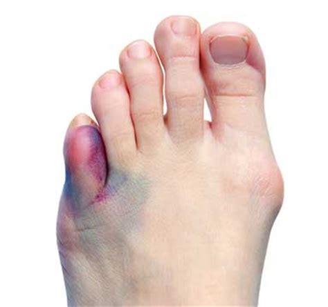 Toe Fractures  Metatarsal Fractures  Broken Toe  Broken. Kalijodo Murals. Unicorn Stickers. Big Flag. Hand Drawn Logo. Pcl Stickers. Tail Signs. Lion Stickers. Chemistry Murals