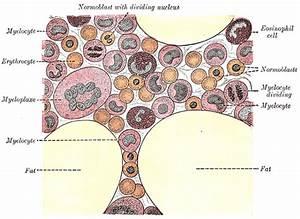 Hematology Of Leukemia