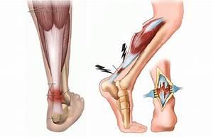 Диета при подагре артрите болях в суставах