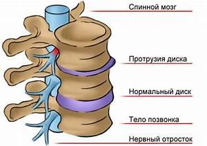 Остеохондроз поясничного отдела протрузия диска лечение