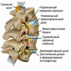 Остеохондроз 5 отдела позвоночника симптомы и лечение