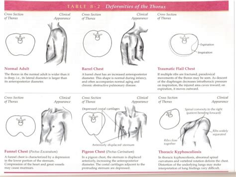 thoracic lung assessment